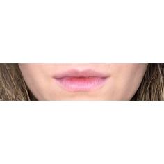 My Natural Lips